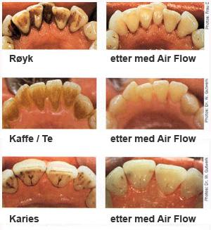 Airflow tannlege